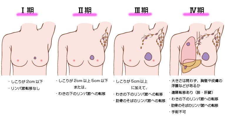 乳がんステージjpg